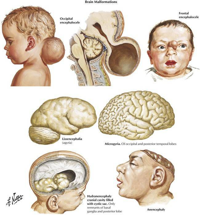 Незрелость головного мозга у новорожденных последствия и лечение
