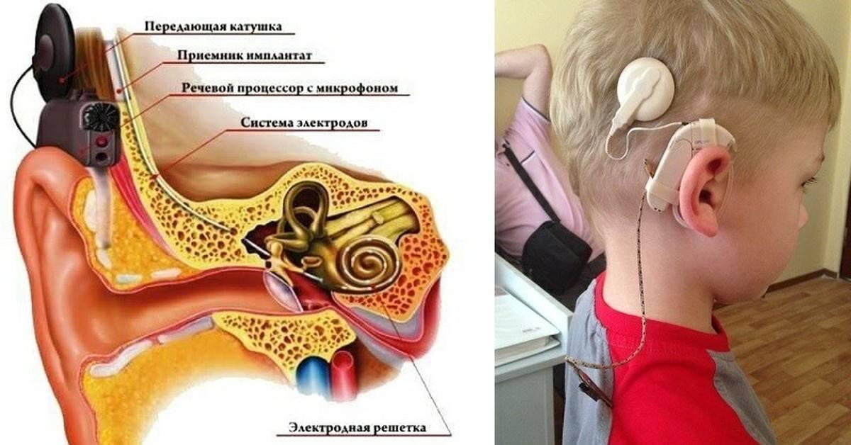 Шунтирование уха у детей и взрослых