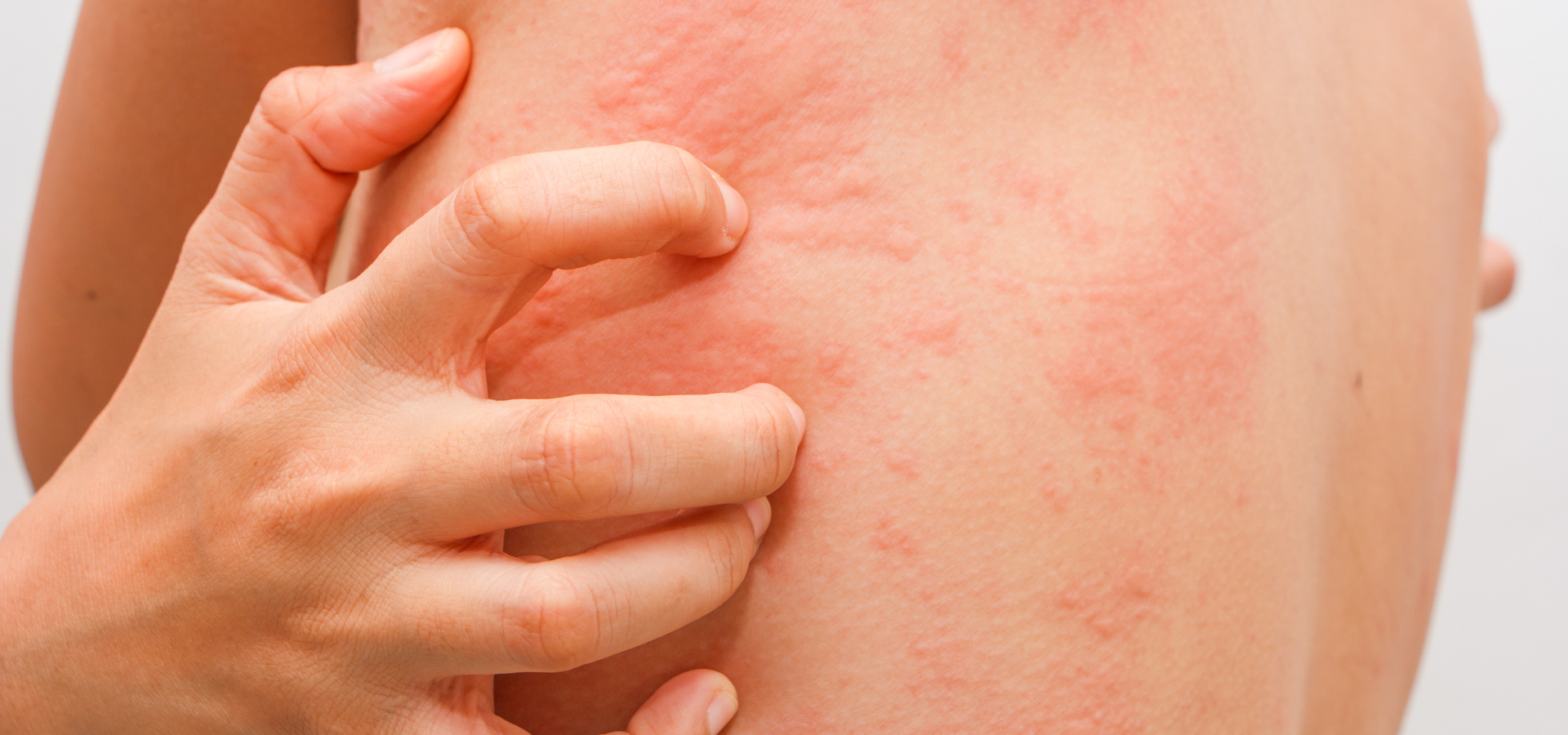 Крапивница после родов: почему на коже разных частей тела появляется сыпь?