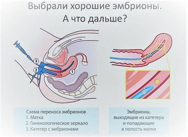 Почему не приживается эмбрион после эко: причины отсутствия, почему не происходит имплантация после переноса, кровотечение