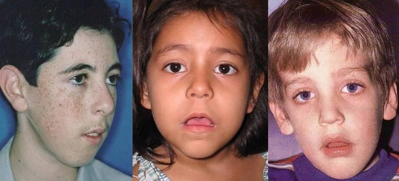 Острый аденоидит у детей: причины, симптомы, лечение
