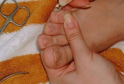Как правильно стричь ногти малышу. фото + видео