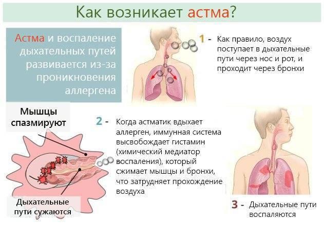 Астма у ребенка. причины, симптомы, лечение и профилактика астмы у детей