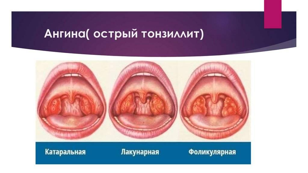 Катаральная ангина: симптомы, лечение и фото горла
