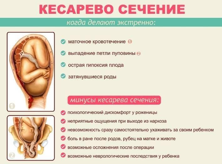 Кесарево сечение: восстановиться без потерь! матка и шов после кесарева, обезболивающее и антибиотики