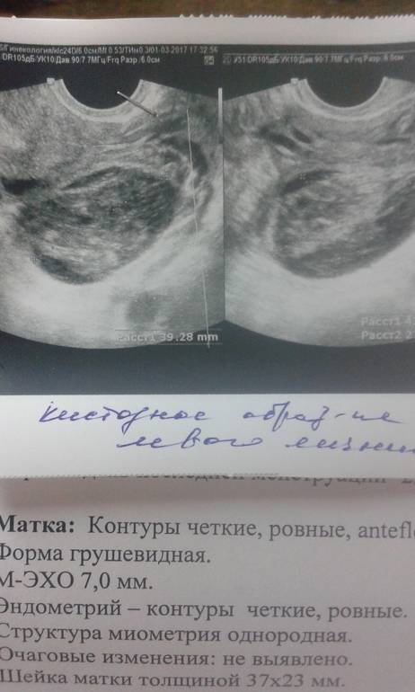 Могут ли перепутать кисту с беременностью на узи