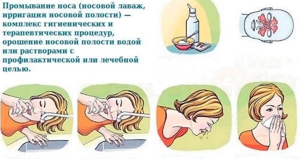 Чем лучше промывать нос ребенку - промывание при насморке, чем можно промыть детям в домашних условиях от соплей