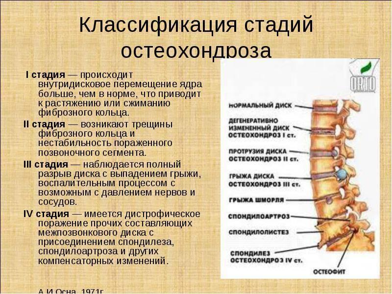 Остеохондроз среднего отдела позвоночника симптомы и лечение | лечение суставов