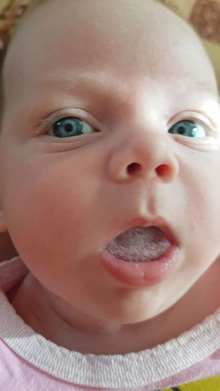 Молочница у младенца во рту: как выглядит (фото), лечение