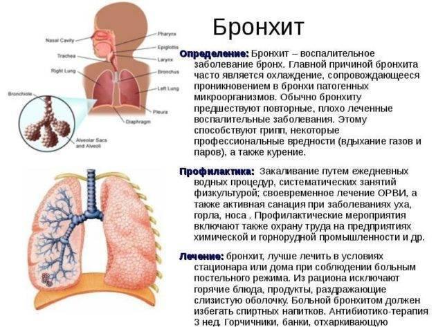 Трахеит у детей: симптомы диагностика и лечение