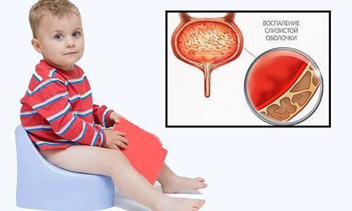 Цистит у мальчиков: причины заболевания у детей в возрасте от 2 до 7 лет, симптомы, лечение и профилактика болезни