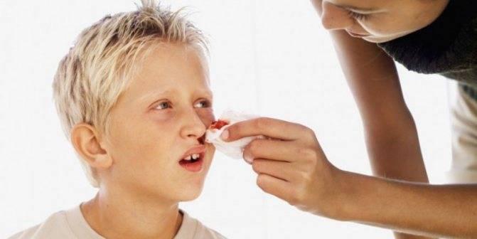 Сопли с кровью у ребенка, кровь при насморке у детей