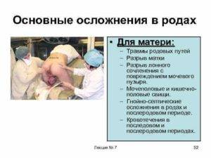 За сколько дней до родов начинают расходится кости таза при беременности