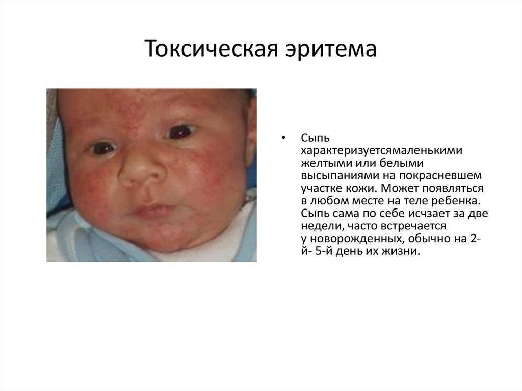 Токсическая эритема у новорожденных, детей и взрослых - причины возникновения высыпаний и лечение