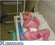 Перекрут гидатиды яичка у детей: симптомы, причины появления у мальчиков, последствия после операции