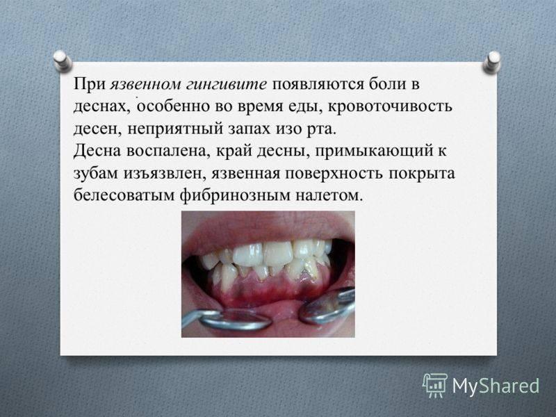 Кровоточивость десен при беременности чем лечить - вип стоматолог