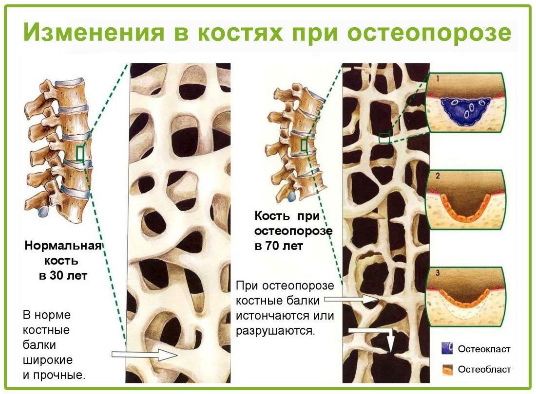 Остеопороз у детей и подростков: причины, симптомы, лечение (фото)
