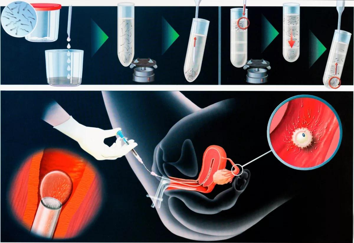 Для чего при ЭКО назначают Дюфастон перед переносом эмбрионов и после процедуры?