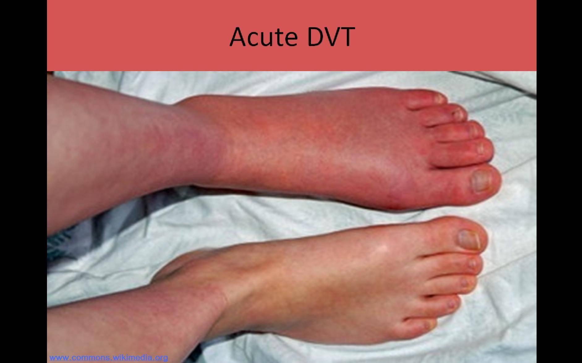Инфекционная эритема у детей - фото, как выглядит, лечение