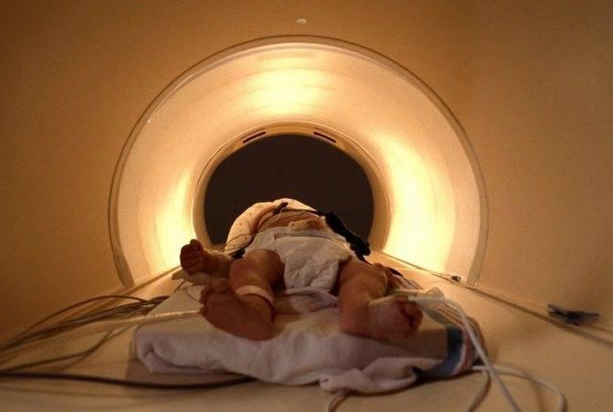 Мрт головного мозга детям под наркозом, памятка пациенту