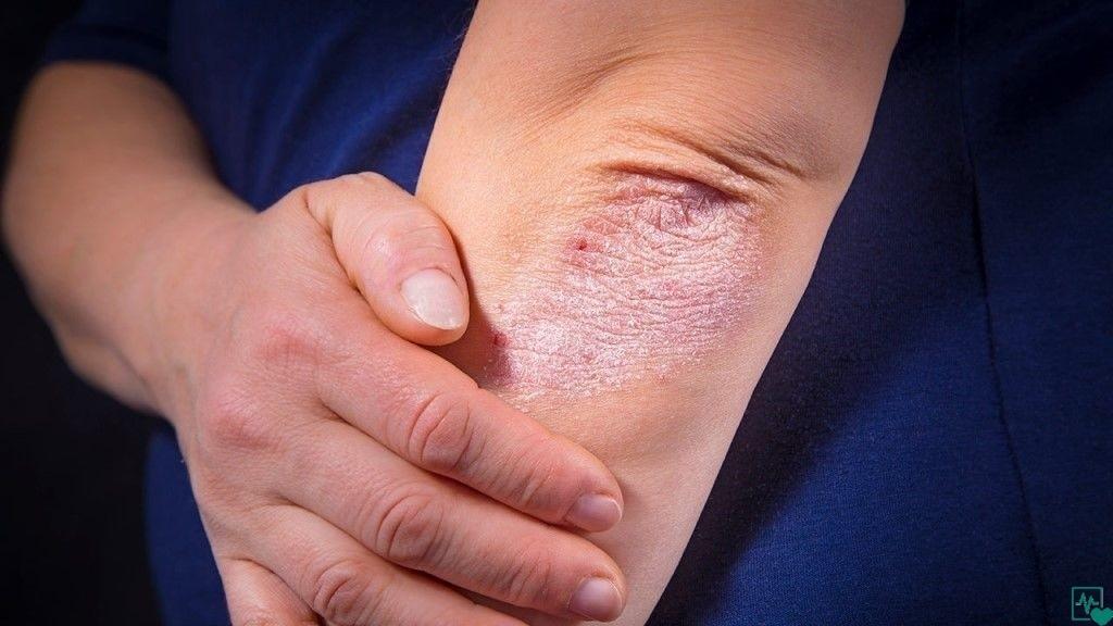 Грибковое поражение кожи - классификация и виды, проявления у ребенка и взрослого, схемы терапии