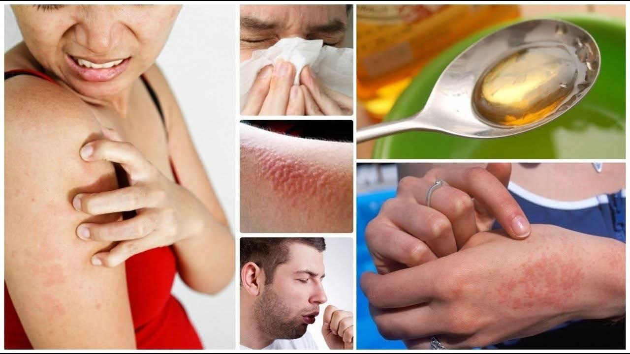 Чем снять зуд при аллергии у ребенка народными средствами