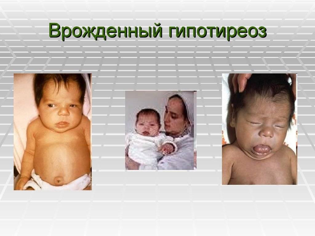 Гипотиреоз у детей: от симптомов до лечения