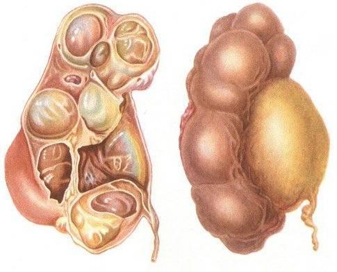 Гидронефроз почки при беременности и у плода - степени, лечение, прогноз