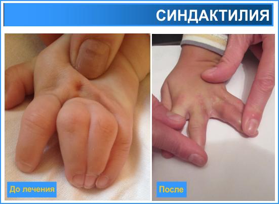 Воспаление крайней плоти у ребенка 2-3-4 года, фото, лечение, советы врачей