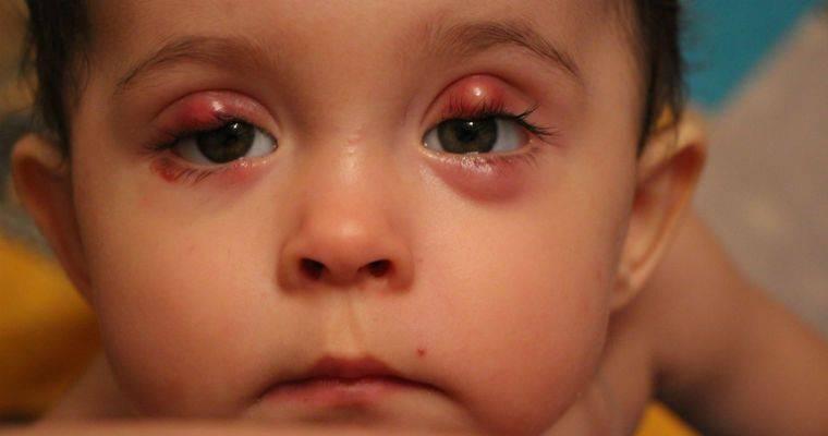 У ребенка красные глаза и гноятся: почему так происходит, что делать если появились выделеения, методы лечения