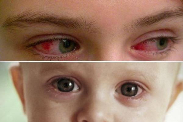 Чем можно лечить вирусный конъюнктивит у детей: список разрешенных препаратов