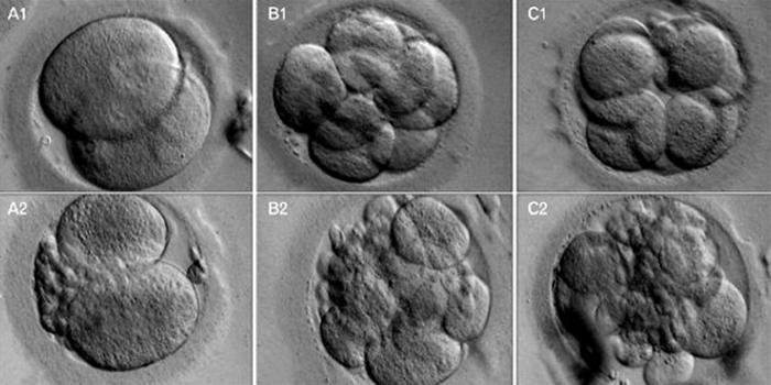 Качество эмбрионов для переноса: классификация и шансы на имплантацию
