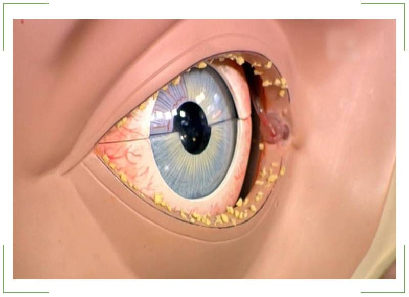 Гной в глазах: причины появления выделений, средства для лечения