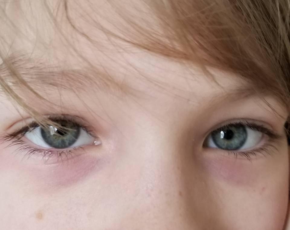 Под глазами темные круги: какая болезнь, признаки у женщин, мужчин, детей, при беременности и после родов, причины и лечение черноты нижнего века