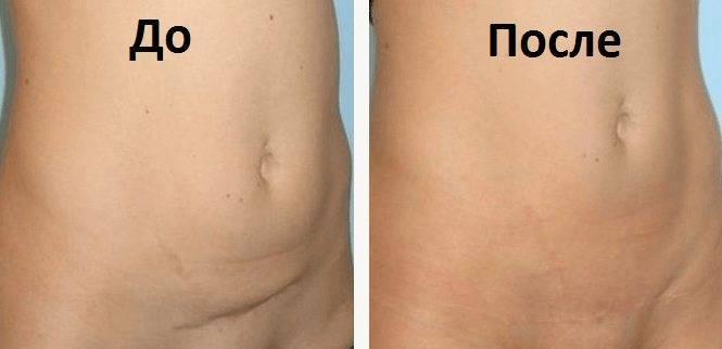 Рубец на матке после кесарева сечения: толщина, норма, когда можно планировать беременность, возможные патологии, фото