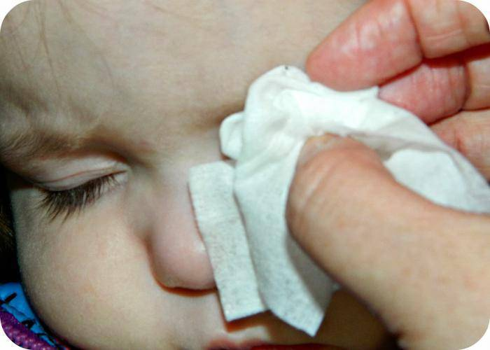 Ребенку попал в глаза песок: что делать, симптомы