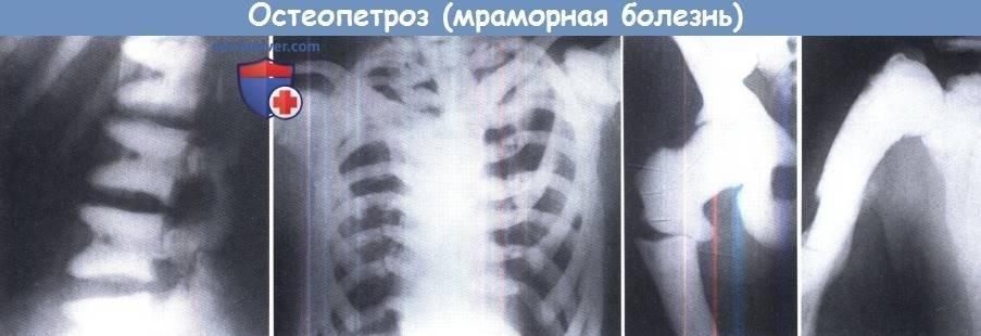 Остеопетроз (мраморная болезнь)