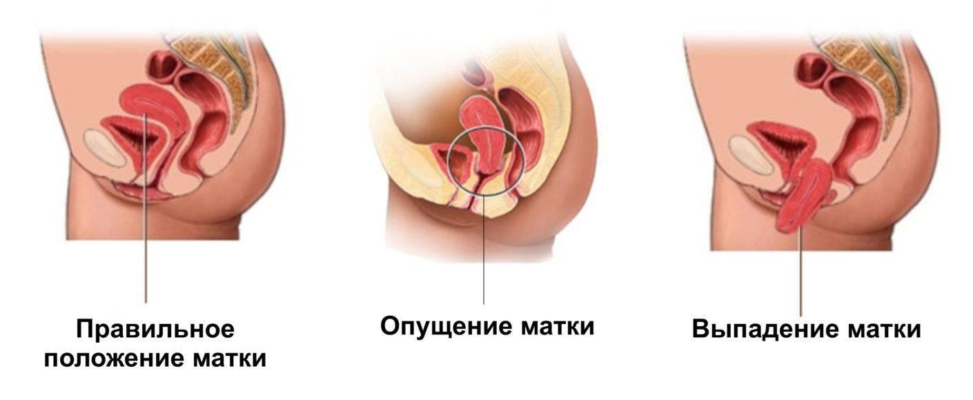Опущение матки: симптомы, лечение и отзывы женщин + что делать при появлении и можно ли лечить без операции в домашних условиях