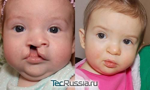 Заячья губа (волчья пасть). о заболевании, причины, операция, фото до и после - строение человека