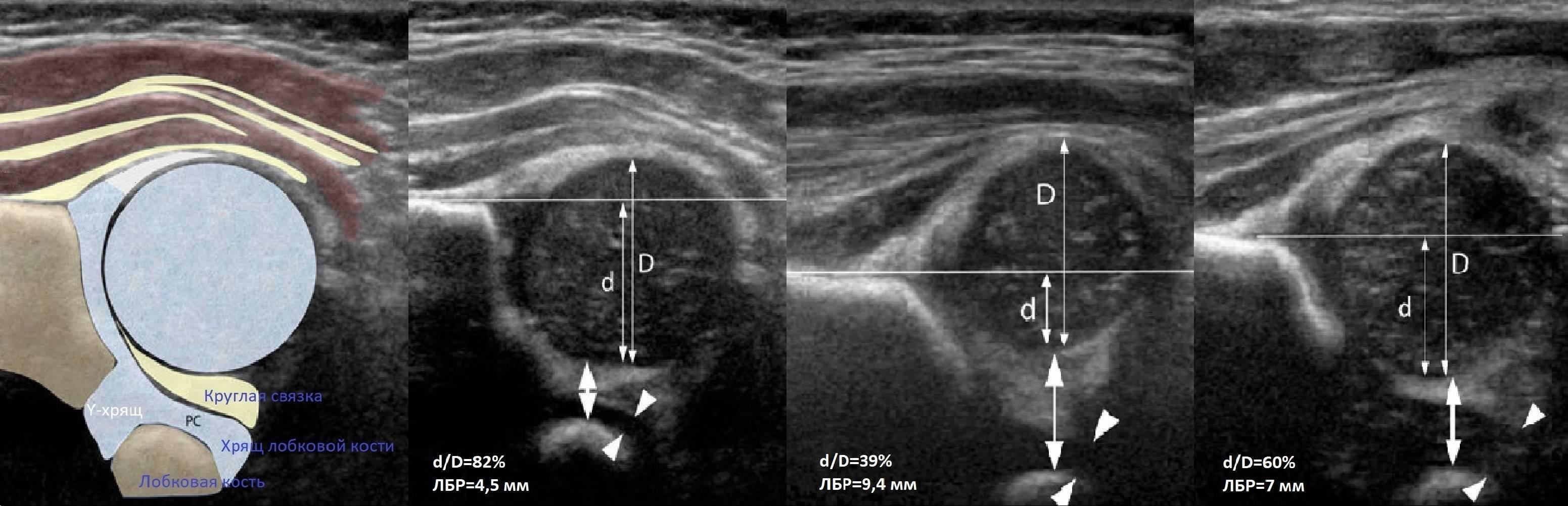 Что показывает узи тазобедренных суставов у грудничков?