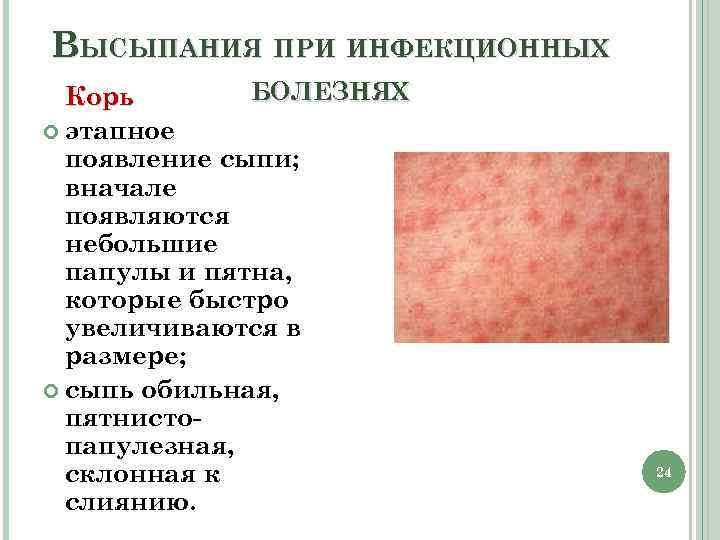 Сыпь при энтеровирусной инфекции у детей (17 фото): симптомы и признаки, как выглядит