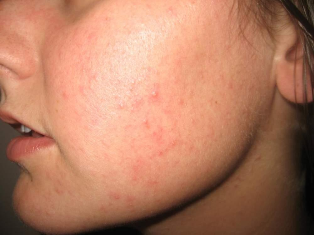 Проблемы с кожей у детей школьного возраста.что делать с угрями и прыщами?