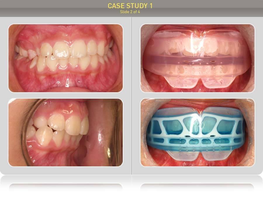 Пластинка на зубы: цена для взрослых и детей, отзывы, фото до и после установки
