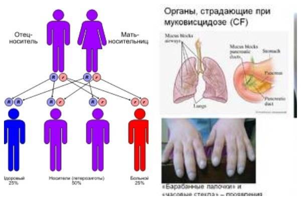 Муковисцидоз — симптомы болезни у детей и взрослых, лечение и препараты