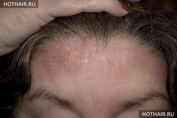 Себорея кожи головы и лица у детей