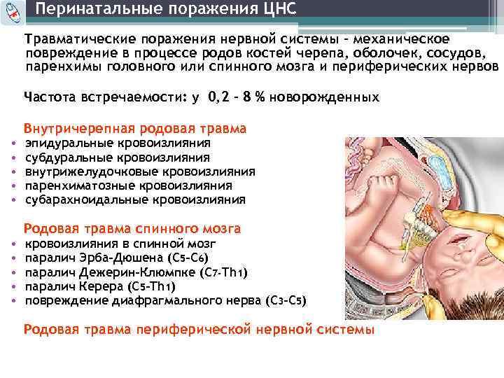 Гипоксия у новорожденных: последствия, признаки, лечение постгипоксических изменений у ребенка