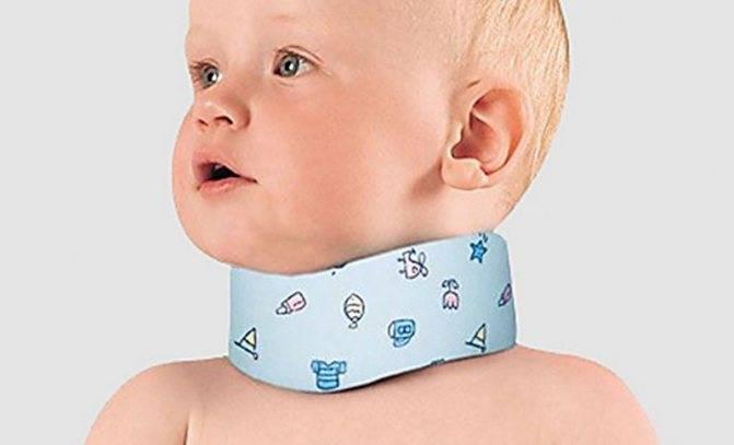 Симптомы повреждения шейного отдела позвоночника у новорожденного