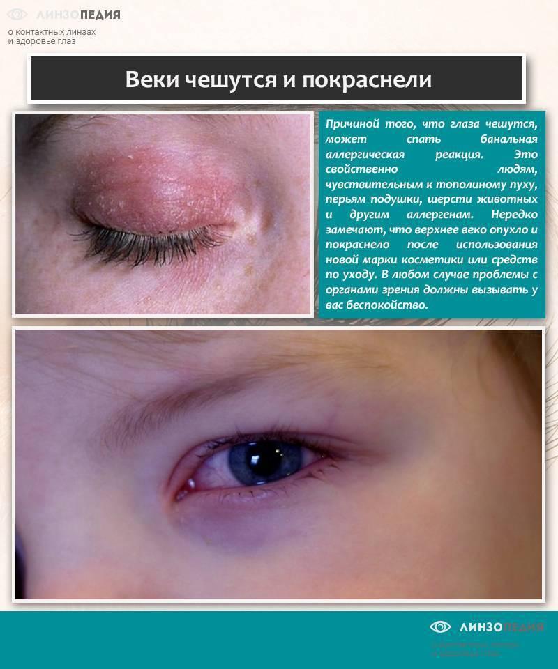 Аллергия на глазах: фото, симптомы, лечение, как проявляется, у ребенка, от косметики, от крема