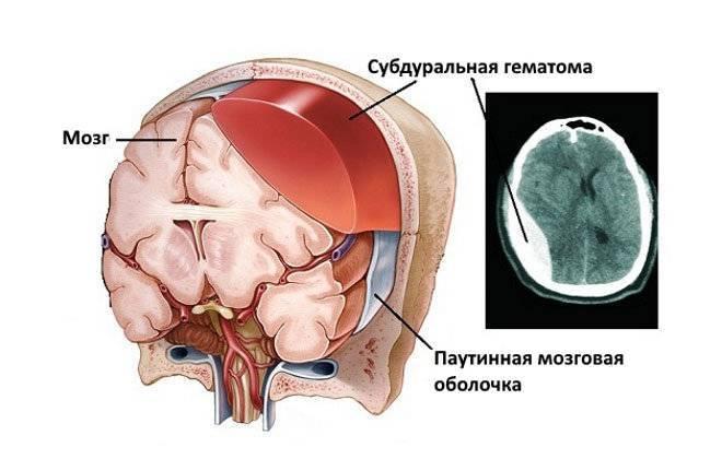 Кровоизлияние в мозг у новорожденных — о причинах, лечении и профилактике