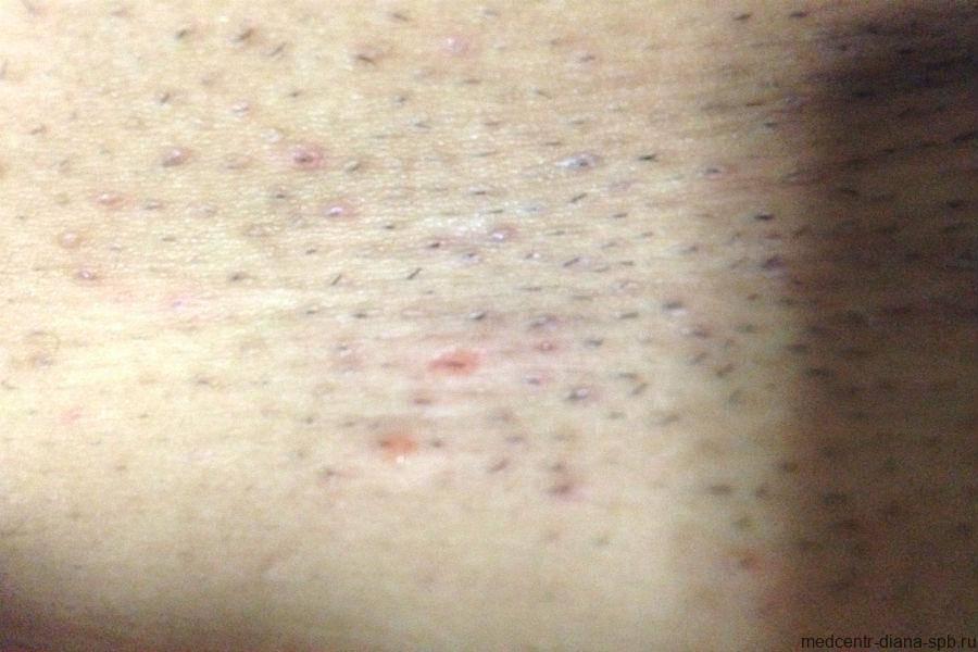 Сыпь и покраснение на яичках у ребёнка